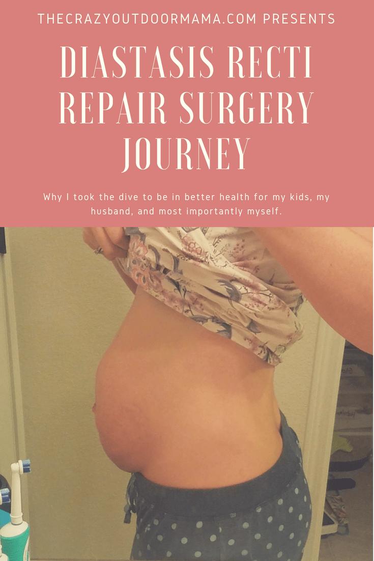 Diastasis Recti Repair Surgery Pt1 The Crazy Outdoor Mama