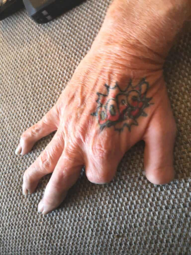 finger missing from camping accident oops tattoo on hand